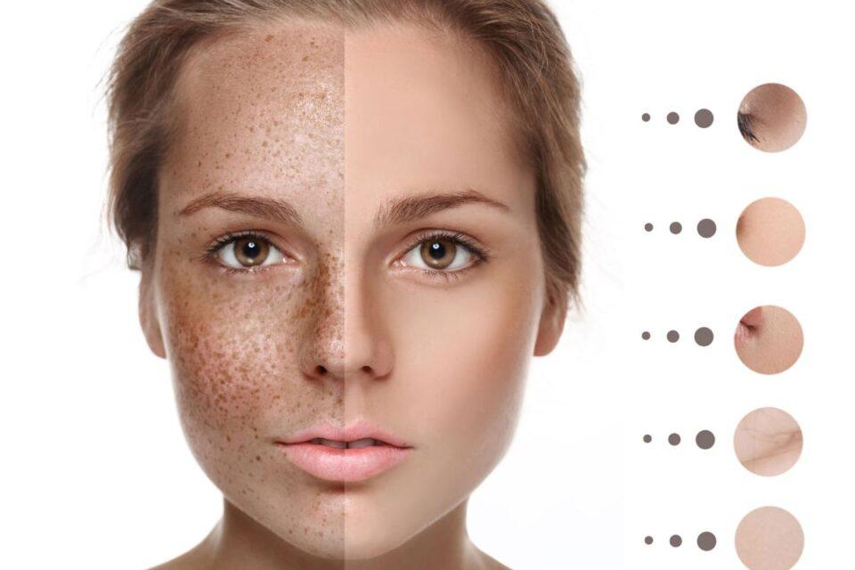 hyperpigmentation-laser-treatment