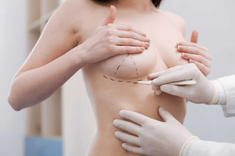 breast-augmentation-toronto