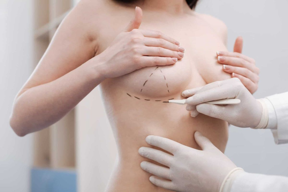 breast-augmentation-toronto