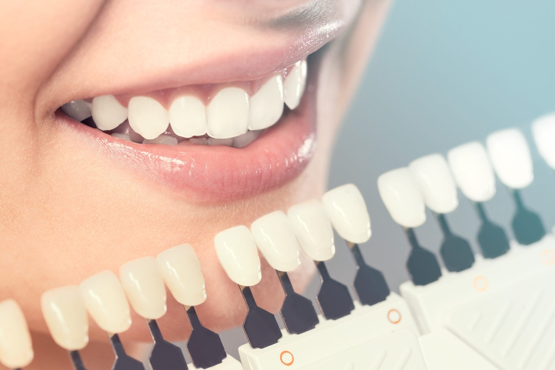 how-to-find-a-cosmetic-dentist